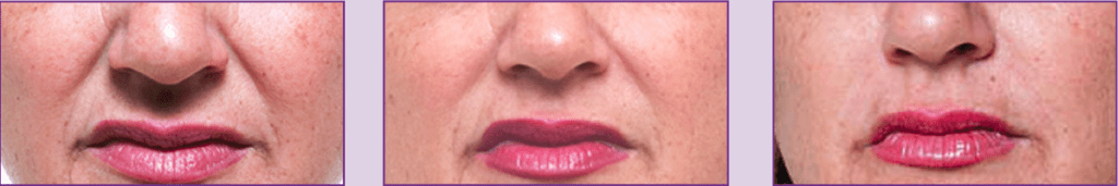 Before-After 1&2 treatments