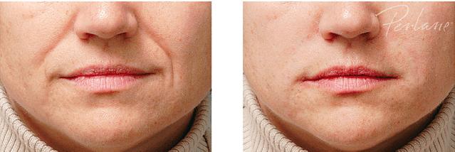 Botox B&A nasolabial