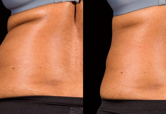 BA-SculpSure-B-Katz-Post-1Tx-12WKs-04-560×384
