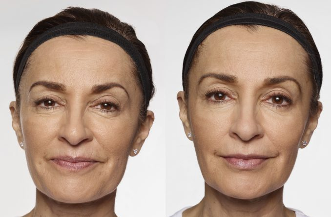 Carol – before and after Restylane