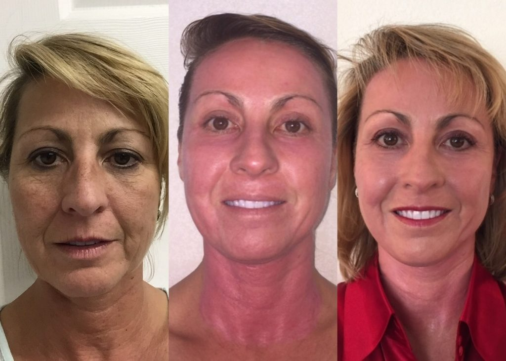 3-step before and after plasma skin resurfacing by Dr. Arnold Almonte, plastic surgeon, Sacramento California