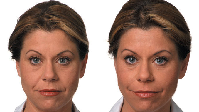 Dr. Ritu Malhotra Filler Before & After