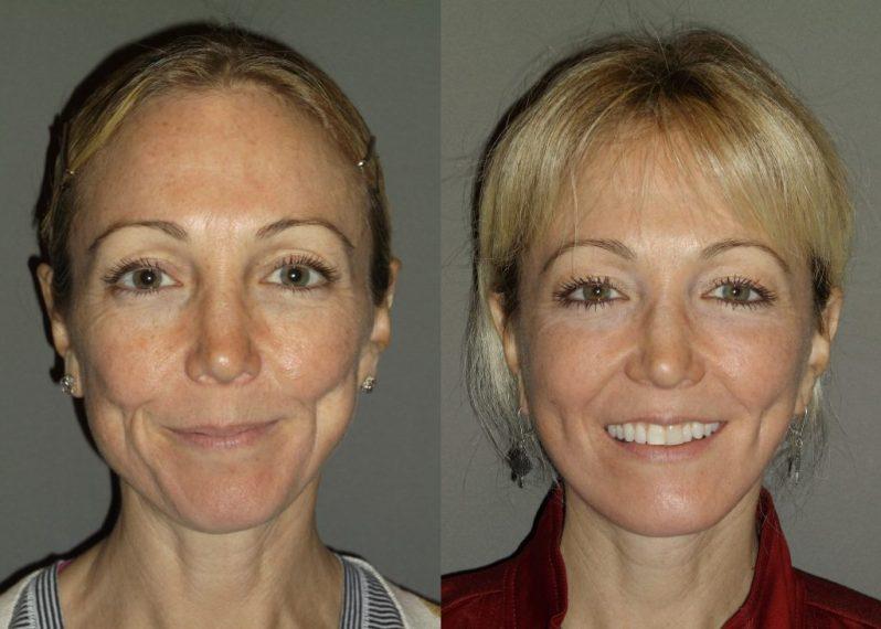 Patient 4 Before & After (Dr. Machida)