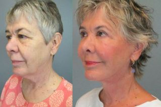 before-after-facelift-by-dr-elizabeth-whitaker