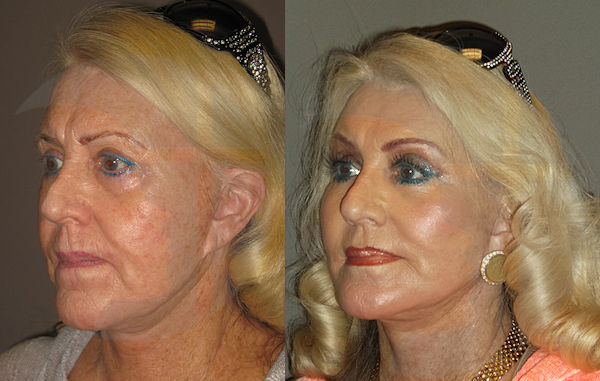 laser Inland Empire, facelift Inland Empire, Before & After facelift, laser, lower blepharoplasty, eyelid surgery by Dr. Brian Machida, MD facial plastic surgeon Inland Empire California