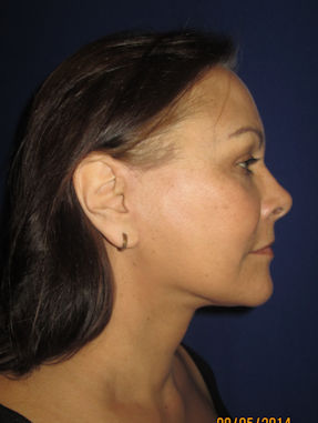 allison-57-after-facelift-by-dr-arnold-almonte
