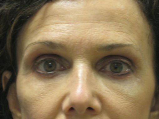eileen-58-after-upper-and-lower-blepharoplasty