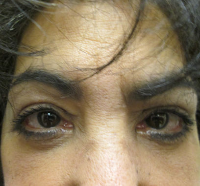 eileen-58-after-upper-and-lower-eyelid-surgery-by-dr-ritu-malhotra-of-cleveland-oh