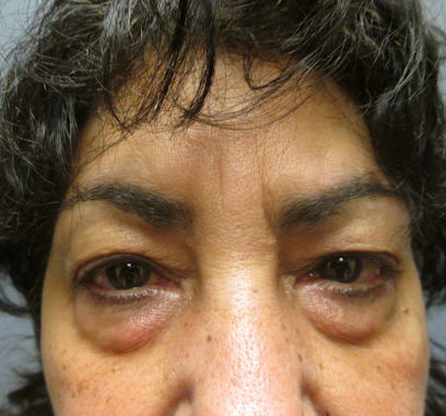 eileen-58-before-upper-and-lower-eyelid-surgery-by-dr-ritu-malhotra-of-cleveland-oh