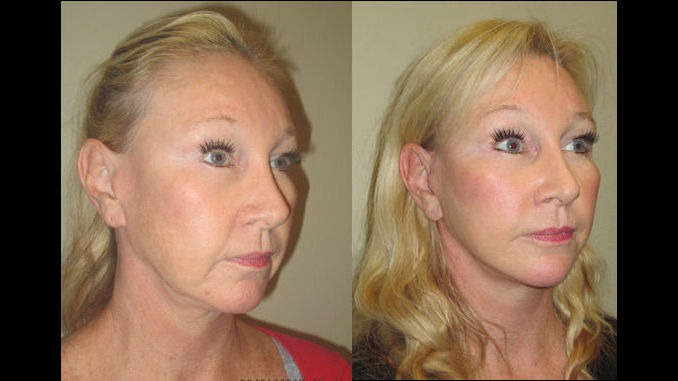 female-52-before-after-facelift-by-dr-arnold-almonte-of-sacramento-ca-ff