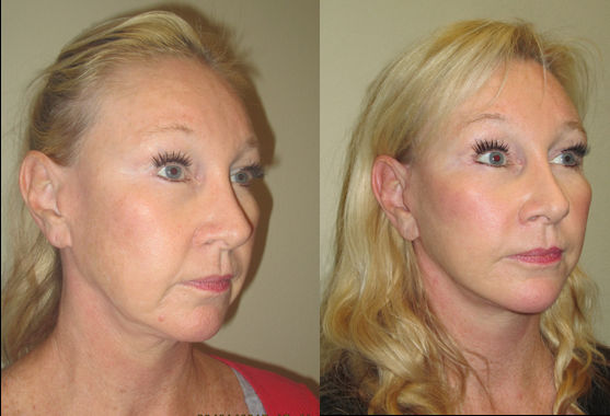 female-52-before-after-facelift-by-dr-arnold-almonte-of-sacramento-ca