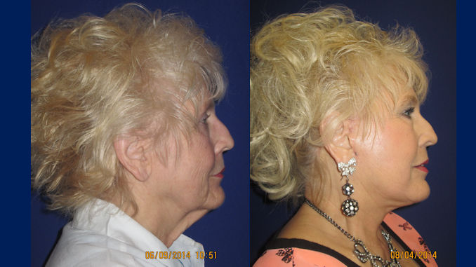 female-71-before-and-after-facelift-by-dr-arnold-almonte-of-sacramento-ca