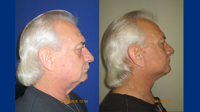 male-63-before-and-after-facelift-by-dr-arnold-almonte-of-sacramento-california