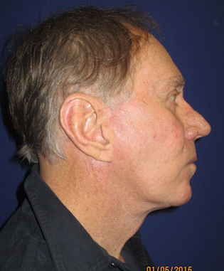 male-68-after-facelift-and-blepharoplasty-by-dr-arnold-almonte