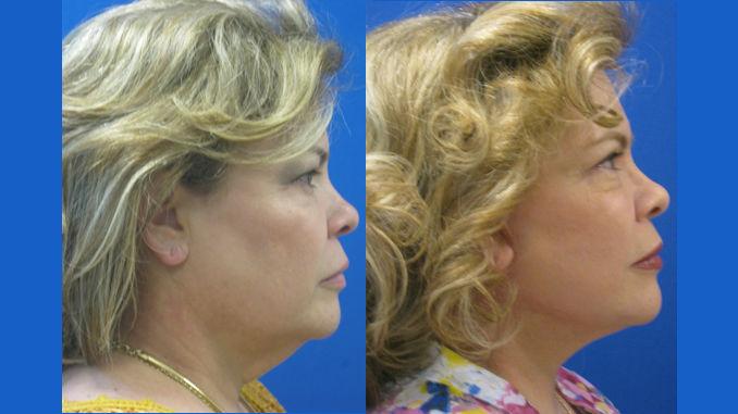 nelaida-54-before-after-laser-assisted-facelift-neck-lift-and-upper-blepharoplasty