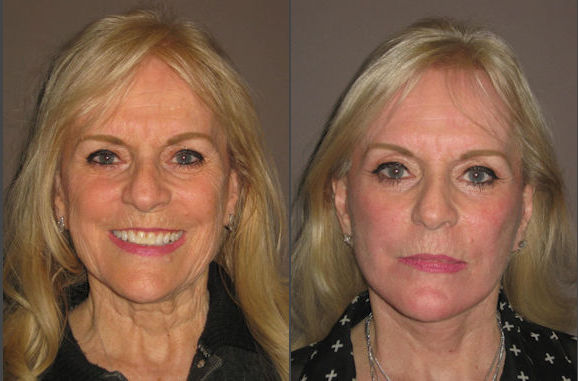 Facelift and necklift by Dr. Brian Machida, facial plastic surgeon, Inland Empire California