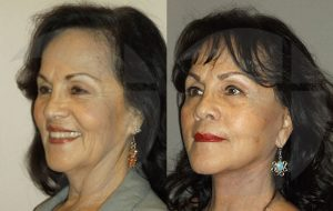 Facelift and neck lift in Inland Empire by Dr. Brian K. Machida, MD facial plastic surgeon