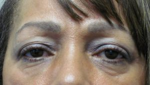 Before blepharoplsty by Dr. Arnold Almonte, plastic surgeon, Sacramento, CA for drooping eyelids & bags under your eyes