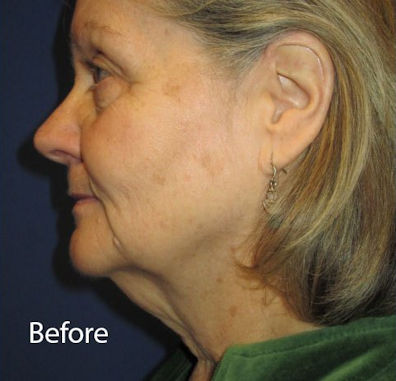 Before facelift, necklift by Dr. Mitchell Blum, facial plastic surgeon, Tracy, CA