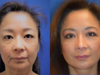 Blepharoplasty, facelift by Dr. Arnold Almonte, plastic surgeon, Sacramento, California Before & After