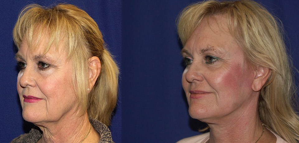 Facelift by Dr. Mitchell Blum, facial plastic surgeon, Tracy, CA, East Bay Area