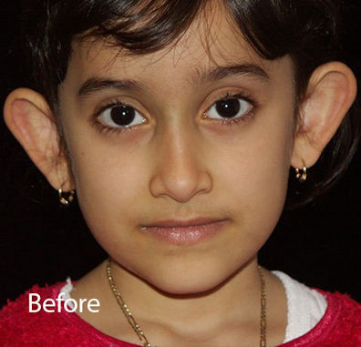Ear – Before2 Ear Reshaping Otoplasty by Dr. Mitchell Blum, facial plastic surgeon, San Francisco, CA