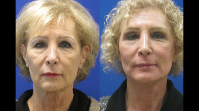Before & After laser-assisted facelift, neck lift, full face laser resurfacing by Dr. Ritu Malhotra, facial plastic surgeon Cleveland, OH