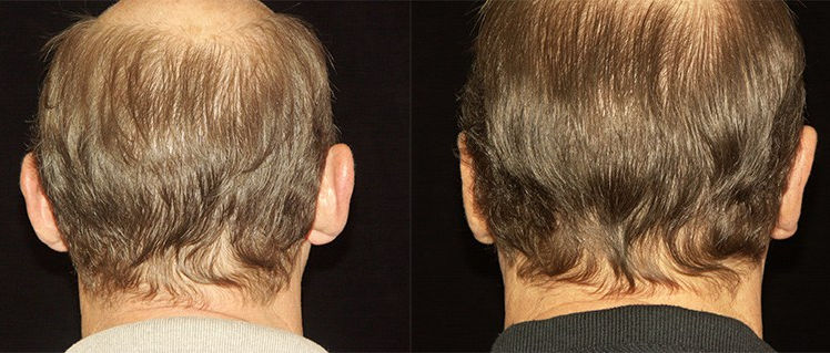 Otoplasty-male-by Dr. Mitchell Blum, facial plastic surgeon, Tracy, San Francisco, CA