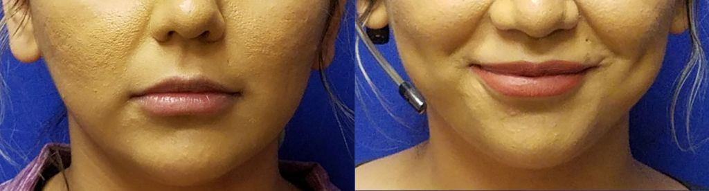 lip injectections, Before and After Defyne lip filler by Dr. Mitchell Blum, facial plastic surgeon, San Francisco East Bay CA