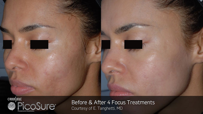 PicoSure Before & After darker complexion, medium complexion offered by Dr. Brian Machida,facial plastic surgeon, Inland Empire, CA