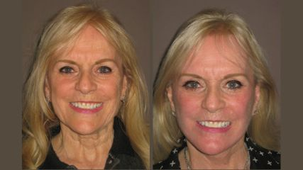 Christine Before & After facelift and fractional laser resurfacing by Dr. Brian Machida, facial plastic surgeon, Inland Empire, Los Angeles,California