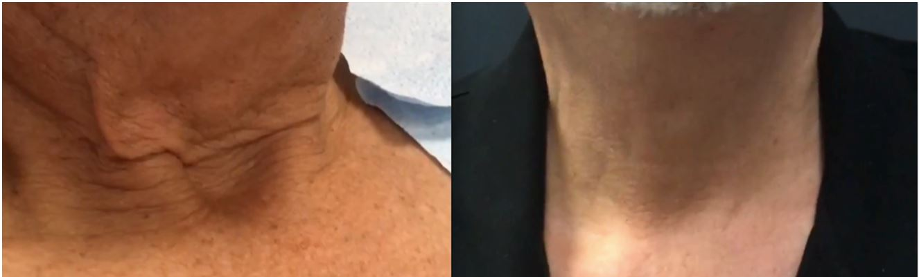 J-Plasma, nonsurgical, necklift, Before and After photo, offered by Dr. Brian Machida, facial plastic surgeon, Ontario, Inland Empire, Los Angeles, CA, California