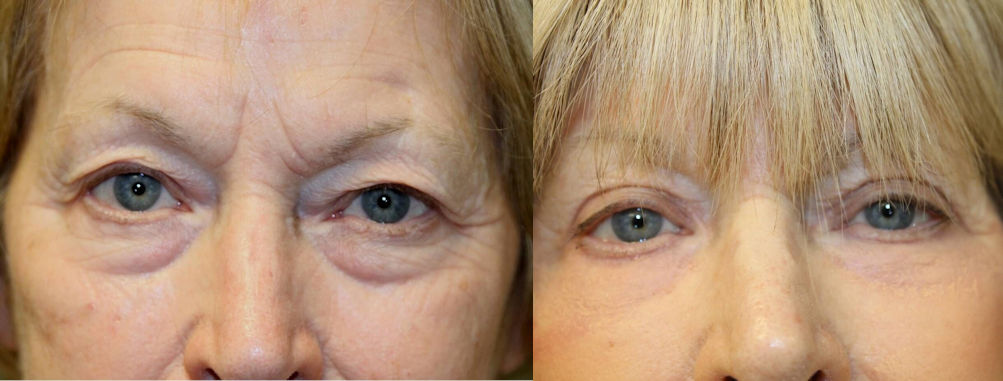 J-Plasma, blepharoplasty, eyelid surgery, offered by Dr. Brian Machida, facial plastic surgeon, Inland Empire, CA, Los Angeles, California