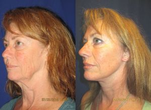 Bay Area facelift, neck lift, Dr. Mitchell Blum, facial plastic surgeon Before and After
