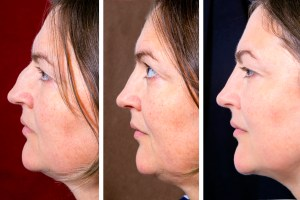 double chin liposuction, facelift, Dr. Brian Machida, facial plastic surgeon, Inland Empire, Los Angeles, California, CA