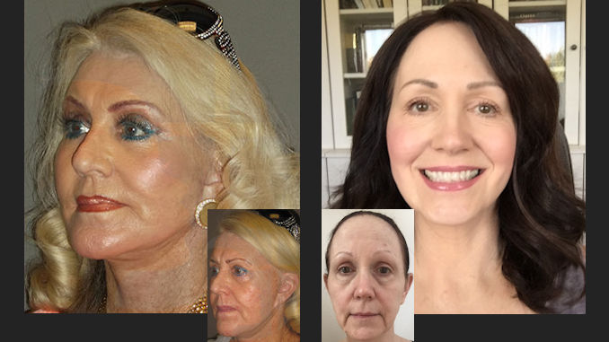 facelift plus laser treatment for face compared to J-Plasma only Dr Brian Machida, facial plastic surgeon, Inland Empire, metro Los Angeles, CA, California