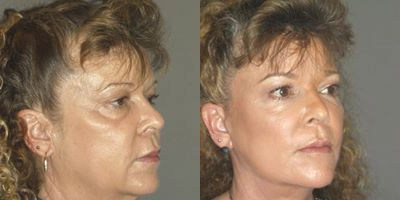 facelift by Dr. Brian Machida, facial plastic surgeon, Inland Empire, California, CA