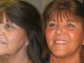 facelift, neck lift, blepharoplasty, laser skin resurfacing Inland Empire by Dr. Brian Machida, facial plastic surgeon