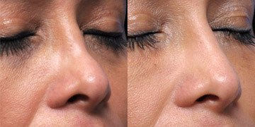 liquid rhinoplasty by Dr. Mitchell Blum, facial plastic surgeon, San Francisco Bay Area, California Before and After 1