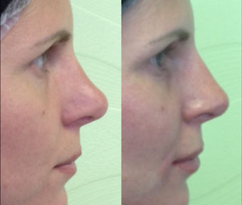 liquid rhinoplasty by Dr. Mitchell Blum, facial plastic surgeon, San Francisco Bay Area, California Before and After 2