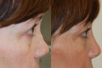 liquid rhinoplasty, liquid nose job by Dr. Mitchell Blum, facial plastic surgeon, San Francisco Bay Area, California, CA, Before and After
