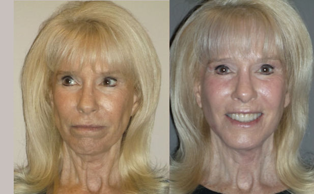 facelift, J-Plasma by Dr. Brian Machida, facial plastic surgeon, Inland Empire, Los Angeles, CA, California
