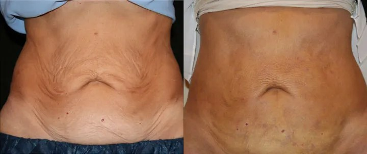 J-Plasma Minimally Invasive Tummy Tuck subdermal skin tightening offered by Dr. Ritu Malhotra, Enhanced Image Center, Cleveland, OH
