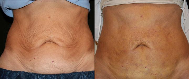 J-Plasma Minimally Invasive Tummy Tuck subdermal skin tightening offered by Dr. Ritu Malhotra, Enhanced Image Center, Cleveland, OH