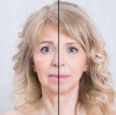 wrinkles, turkey neck, non-invasive treatment