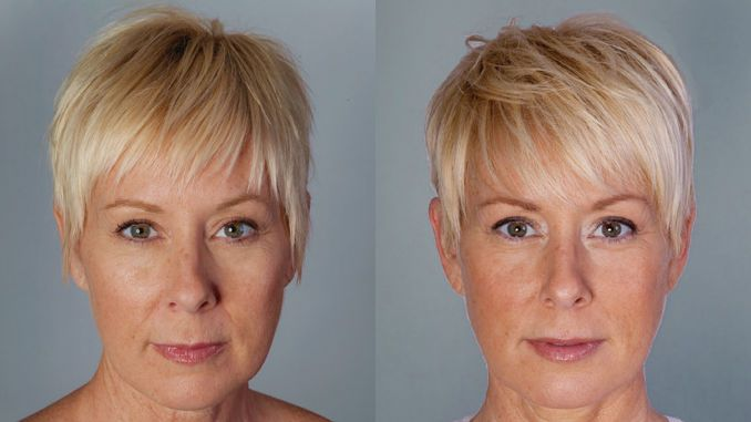 Bellafill nasolabial folds, marionette lines, cheek filler offered by Dr. Brian Machida, facial plastic surgeon, Inland Empire, CA