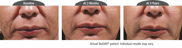 nasolabial folds Inland Empire,Bellafill, Bellafill Inland Empire,filler,Before and After photos, Inland Empire, CA