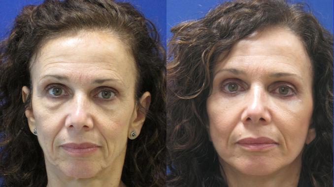facelift Cleveland, laser Cleveland, blepharoplasty Cleveland, Dr. Ritu Malhotra, facial plastic surgeon Cleveland