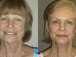 Renuvion J-Plasma wrinkles Inland Empire by Dr. Brian Machida facial plastic surgeon