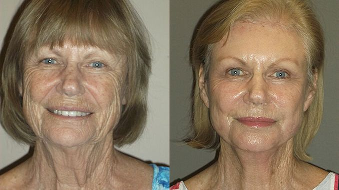 Renuvion J-Plasma wrinkles Inland Empire by Dr. Brian Machida facial plastic surgeon